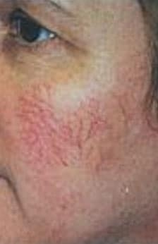 Facial Vein Laser Therapy Before