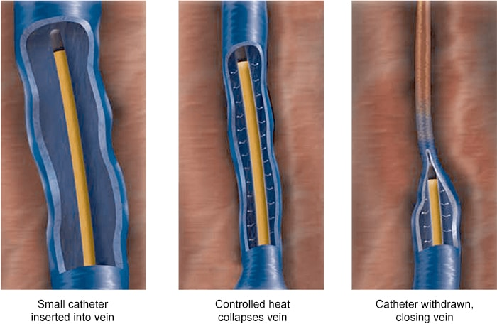 Endovenous Radiofrequency Ablation | Varicose Veins