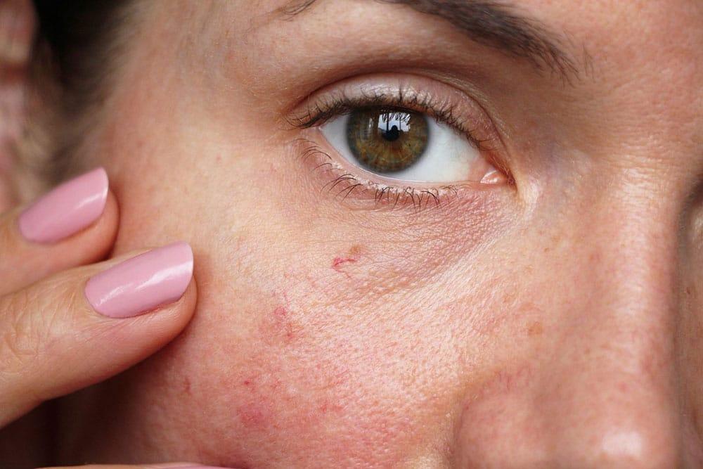 Facial Vein Treatment | Toronto