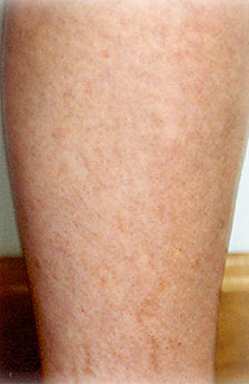 Laser Vein Therapy After
