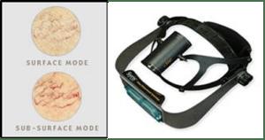 pre-op-surface-laser
