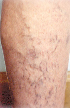 Laser Vein Therapy Before