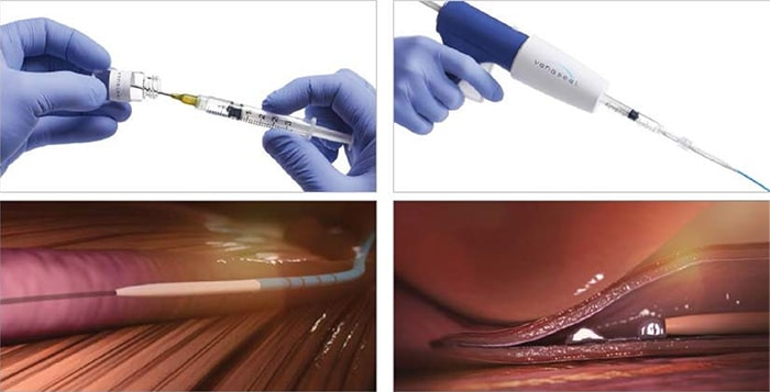 VenaSeal™ Treatment for varicose veins